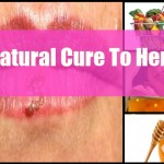 Treat Herpes In Natural, Side-Effect Free Methods