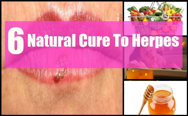 Natural Cure to Herpes